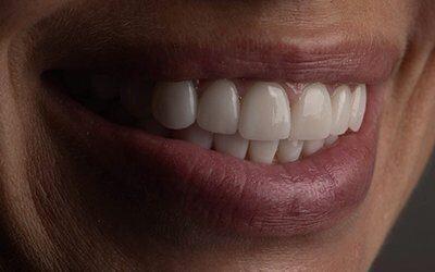 Отзывы электрическая зубная щетка philips sonicare