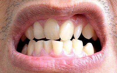 Oral b электрическая зубная щетка купить